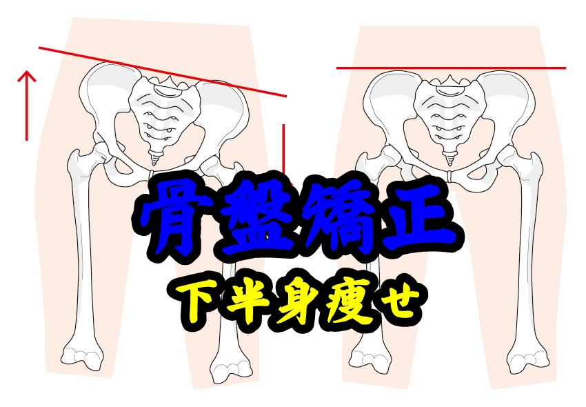 骨盤の矯正で下半身ダイエットが出来る?骨盤体操が太もも痩せに効果的!